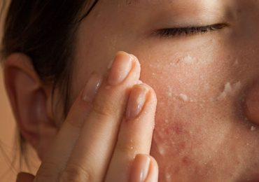 How to Treat Large Open Pores Correctly?