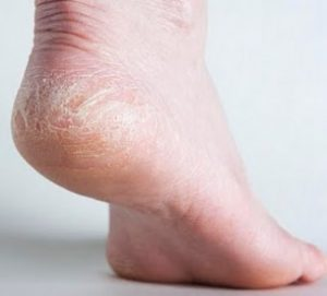 Cracked Heels Treatment with Home Remedies