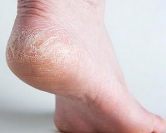 Cracked Heels Causes and Treatment with Home Remedies
