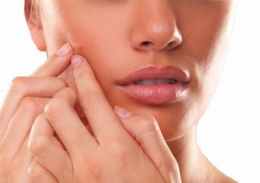 How to Get Rid of Acne Scars on Face Naturally and Fast
