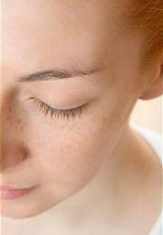 How to Get Rid of Dry Patches on Face Naturally