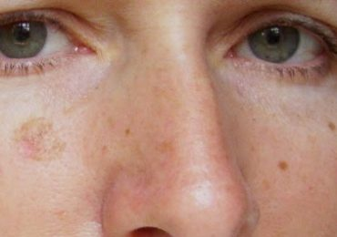 How to Get Rid of Peeling Skin on Face from Sunburn Overnight