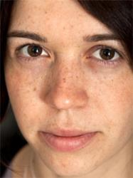 How to Get Rid of White Patches on Face Skin from Sun