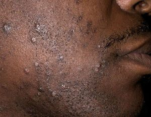 How to Get Rid of Razor Bumps on Face for African American Black Men
