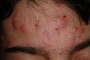 How to Get Rid of Blind Pimples Overnight on Forehead